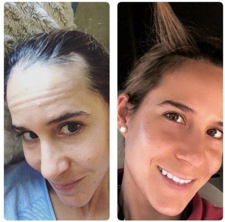 Azahara Muñoz, antes y después del tratamiento contra la enfermedad de Hashimoto.